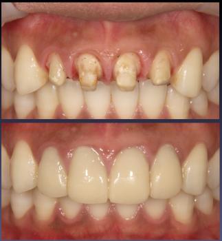 治療・モックアップ・精密仮歯