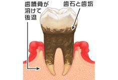 中等度の歯周炎