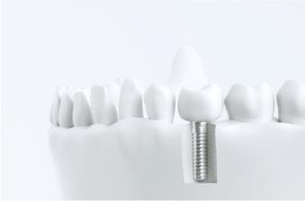 精密仮歯の装着